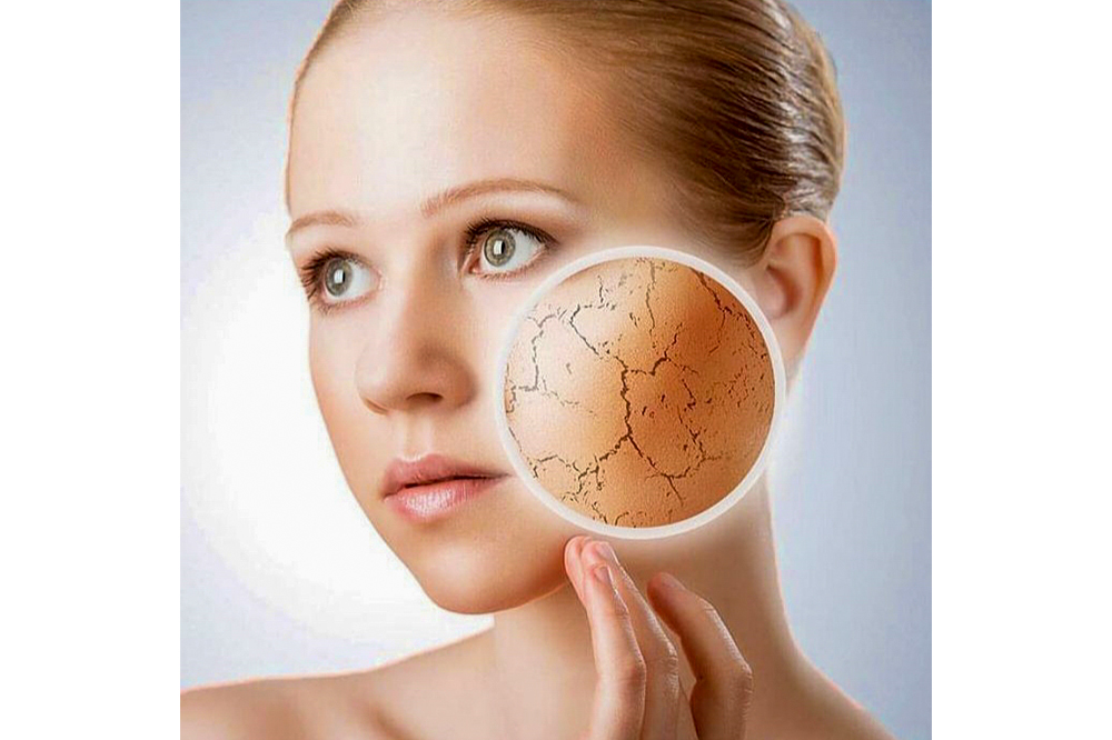 Dealing with Dry Skin Patches
