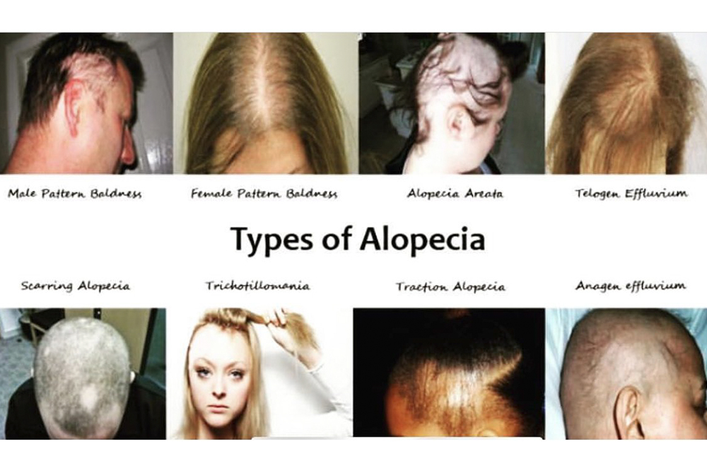 How do I know what type of  Alopecia I have?