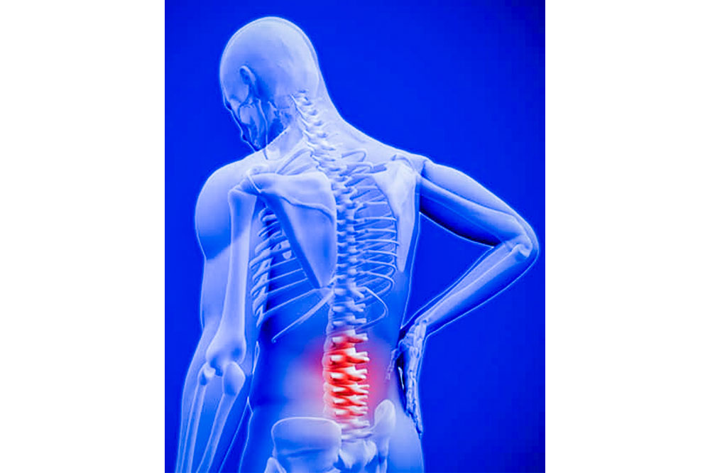 All you need to know about low back pain