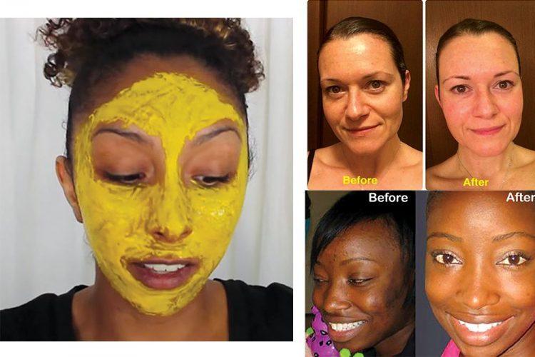 Turmeric facial mask